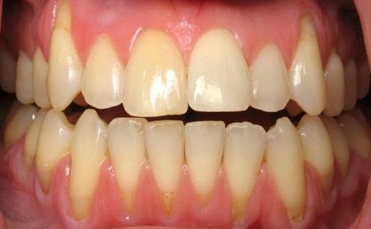 Sarıyer diş hastanesi yorumlarım