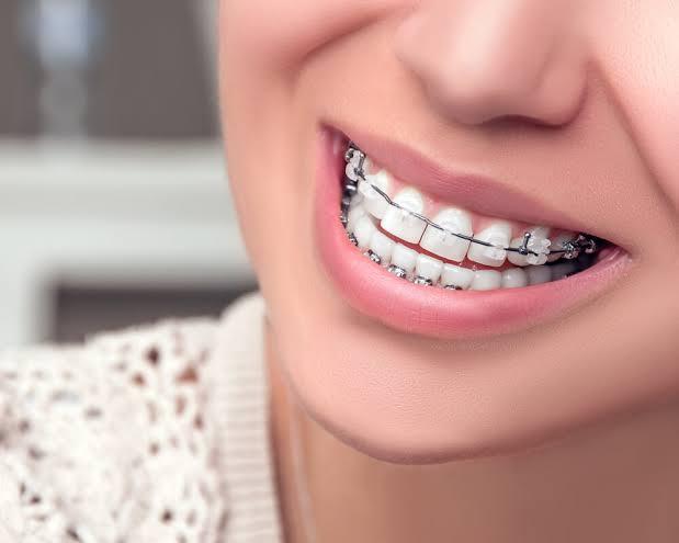 Ortodonti randevusu nasıl alınır ?